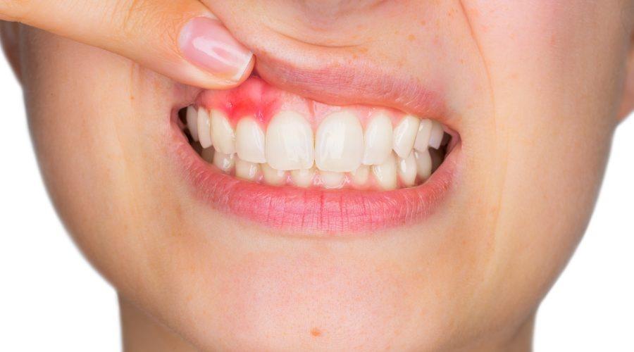Implantologia dentale - i 5 motivi per cui è la soluzione migliore per riavere i denti fissi